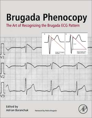 Brugada Phenocopy