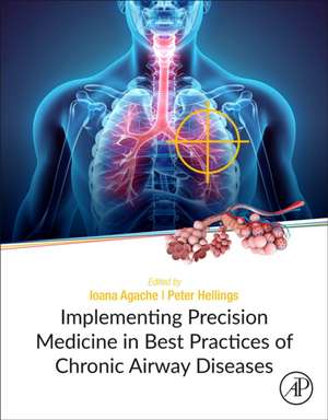 Implementing Precision Medicine in Best Practices of Chronic Airway Diseases de Ioana Agache