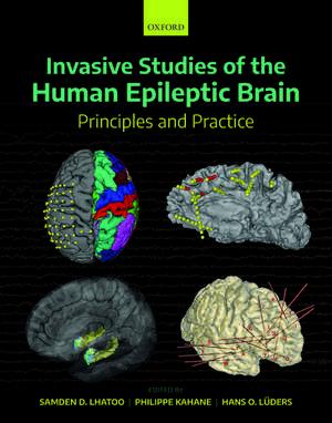 Invasive Studies of the Human Epileptic Brain: Principles and Practice de Samden D. Lhatoo