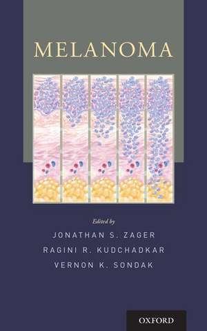 Melanoma de Jonathan S. Zager
