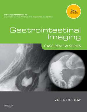 Gastrointestinal Imaging: Case Review Series