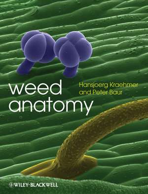 Weed Anatomy