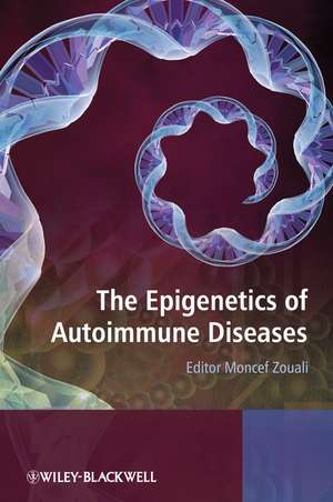 The Epigenetics of Autoimmune Diseases