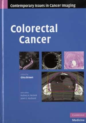 Colorectal Cancer de Gina Brown