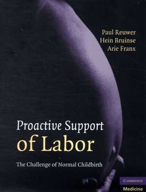 Reuwer, P: Proactive Support of Labor