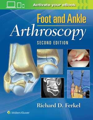 Foot & Ankle Arthroscopy