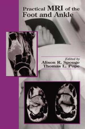 Practical MRI of the Foot and Ankle:  Methods and Applications de Alison R. Spouge