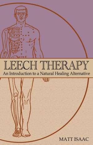 Leech Therapy