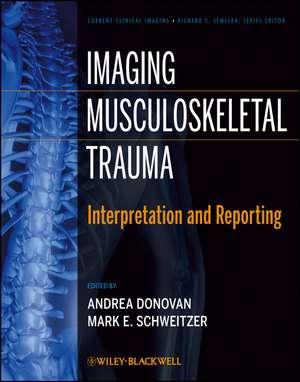 Imaging Musculoskeletal Trauma
