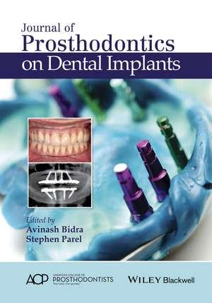 Journal of Prosthodontics on Dental Implants