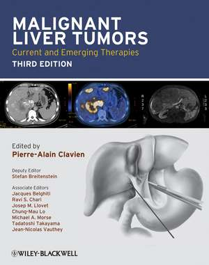 Malignant Liver Tumors: Current and Emerging Therapies de Pierre–Alain Clavien