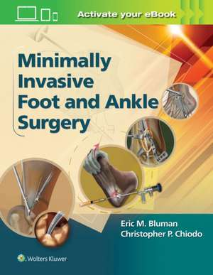Minimally Invasive Foot & Ankle Surgery