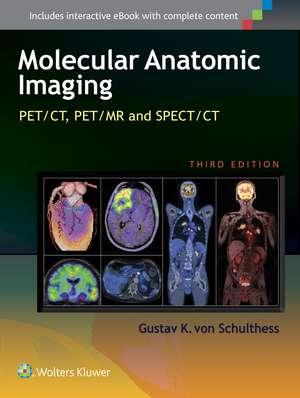 Molecular Anatomic Imaging