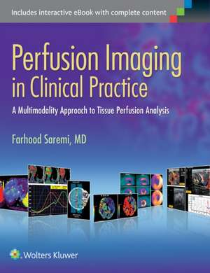 Perfusion Imaging in Clinical Practice