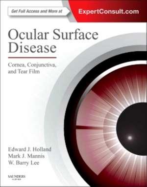 Ocular Surface Disease: Cornea, Conjunctiva and Tear Film