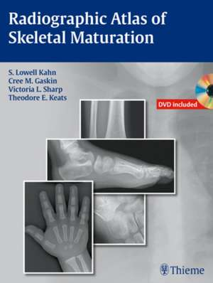 Radiographic Atlas of Skeletal Maturation de S. Lowell Kahn