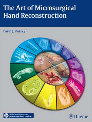 Art of Microsurgical Hand Reconstruction