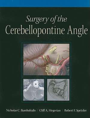Surgery of the Cerebellopontine Angle [With DVD]