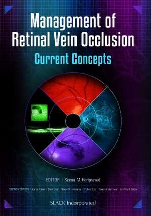 Management of Retinal Vein Occlusion