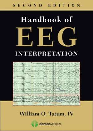Handbook of EEG Interpretation