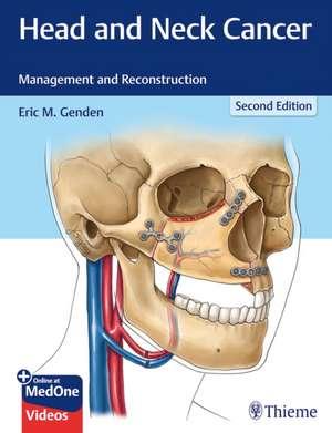 Head and Neck Cancer de Eric M. Genden
