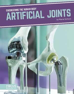 Artificial Joints de Marne Ventura