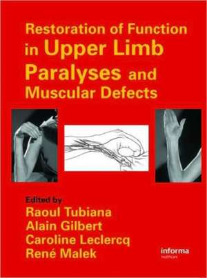 Restoration of Functions in Upper Limb Paralyses and Muscular Defects