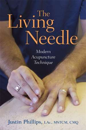 The Living Needle: Modern Acupuncture Technique