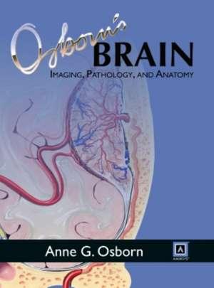 Osborn's Brain de Anne G. Osborn