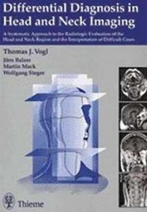Differential Diagnosis in Head and Neck Imaging de Thomas J. Vogl