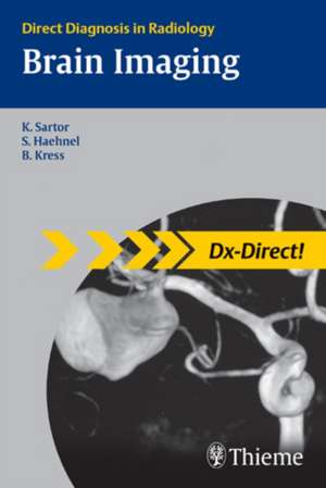 Brain Imaging de Klaus Sartor