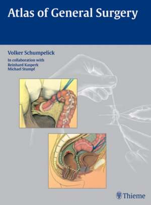 Atlas of General Surgery