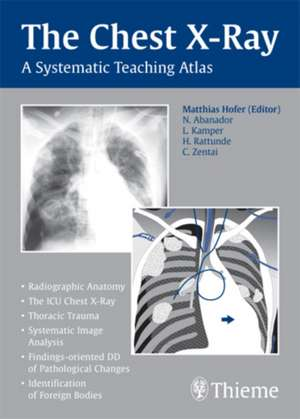 Chest X-ray Trainer