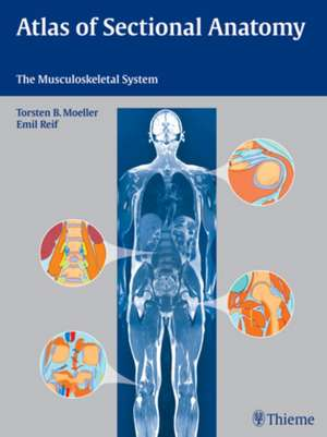 Atlas of Sectional Anatomy