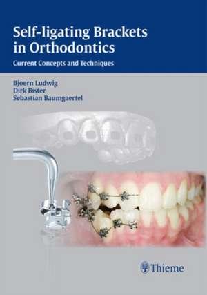 Self-ligating Brackets in Orthodontics