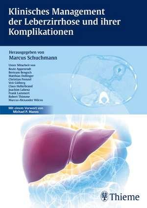 Klinisches Management der Leberzirrhose und ihrer Komplikationen