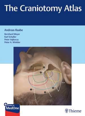The Craniotomy Atlas de Andreas Raabe