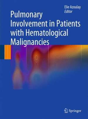 Pulmonary Involvement in Patients with Hematological Malignancies de Elie Azoulay