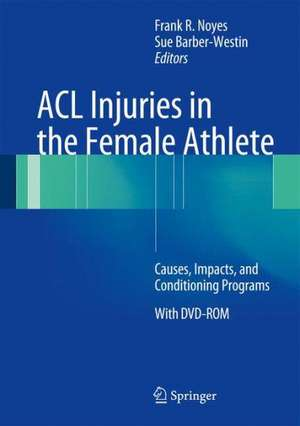 ACL Injuries in the Female Athlete: Causes, Impacts, and Conditioning Programs de Frank R. Noyes