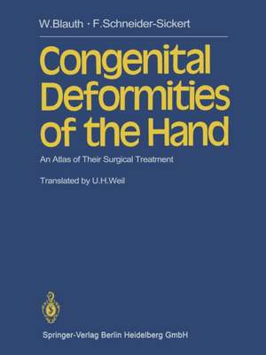 Congenital Deformities of the Hand: An Atlas of Their Surgical Treatment de W. Blauth