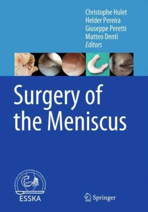 Surgery of the Meniscus de Christophe Hulet