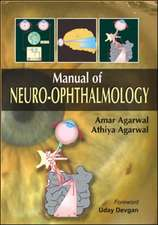 Manual of Neuro-Ophthalmology