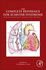 The Complete Reference for Scimitar Syndrome: Anatomy, Epidemiology, Diagnosis and Treatment