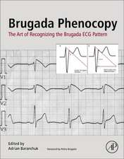 Brugada Phenocopy: The Art of Recognizing the Brugada ECG Pattern