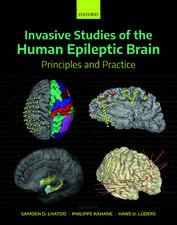 Invasive Studies of the Human Epileptic Brain