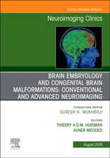 Brain Embryology and the Cause of Congenital Malformations, An Issue of Neuroimaging Clinics of North America
