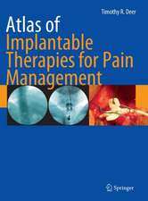 Atlas of Implantable Therapies for Pain Management:  An Evidence-Based Approach