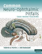 Common Neuro-Ophthalmic Pitfalls: Case-Based Teaching