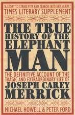 True History Of The Elephant Man