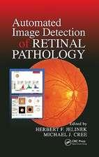 Automated Image Detection of Retinal Pathology